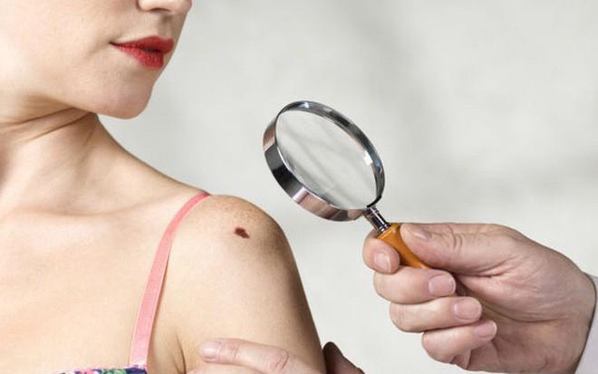 Cẩn thận với 5 dấu hiệu bất thường của nốt ruồi cũng có thể cảnh báo nguy cơ mắc bệnh ung thư da - Ảnh 4.