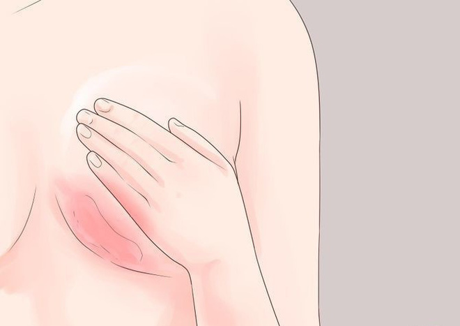 4 dấu hiệu ban đầu của nhiều căn bệnh nguy hiểm mà con gái không nên chủ quan bỏ qua - Ảnh 2.