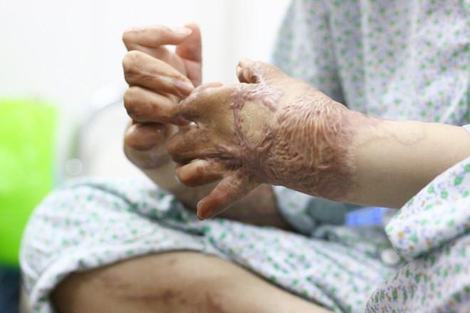 """Sau 1 năm và hàng chục cuộc phẫu thuật, người vợ Hà Nội bị chồng thiêu hôm mùng 2 Tết, chỉ có 1% cơ hội sống sót đã """"hồi sinh"""" - Ảnh 3."""