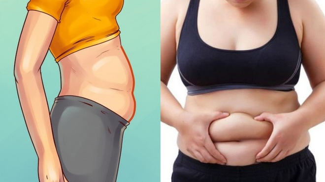 Có 3 kiểu béo bụng không phải do thừa cân, béo phì mà ngầm cảnh ...