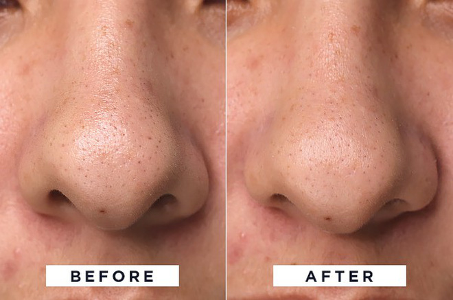 Để da sạch mịn, không mụn đầu đen, cô nàng này đã thử 4 phương pháp phổ biến nhất và rút ra kết luận đáng giá - Ảnh 3.
