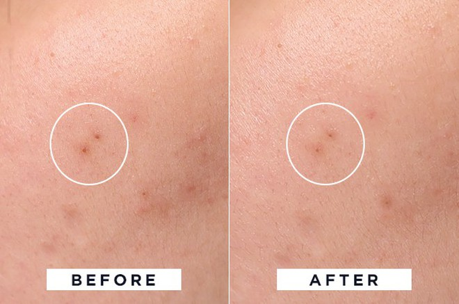 Để da sạch mịn, không mụn đầu đen, cô nàng này đã thử 4 phương pháp phổ biến nhất và rút ra kết luận đáng giá - Ảnh 5.