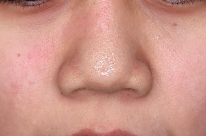 Để da sạch mịn, không mụn đầu đen, cô nàng này đã thử 4 phương pháp phổ biến nhất và rút ra kết luận đáng giá - Ảnh 9.