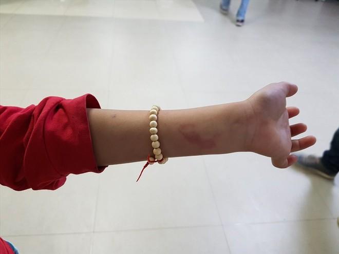 Hải Phòng: Không làm đúng bài tập, học sinh lớp 2 bị cô đánh bầm lưng - Ảnh 2.