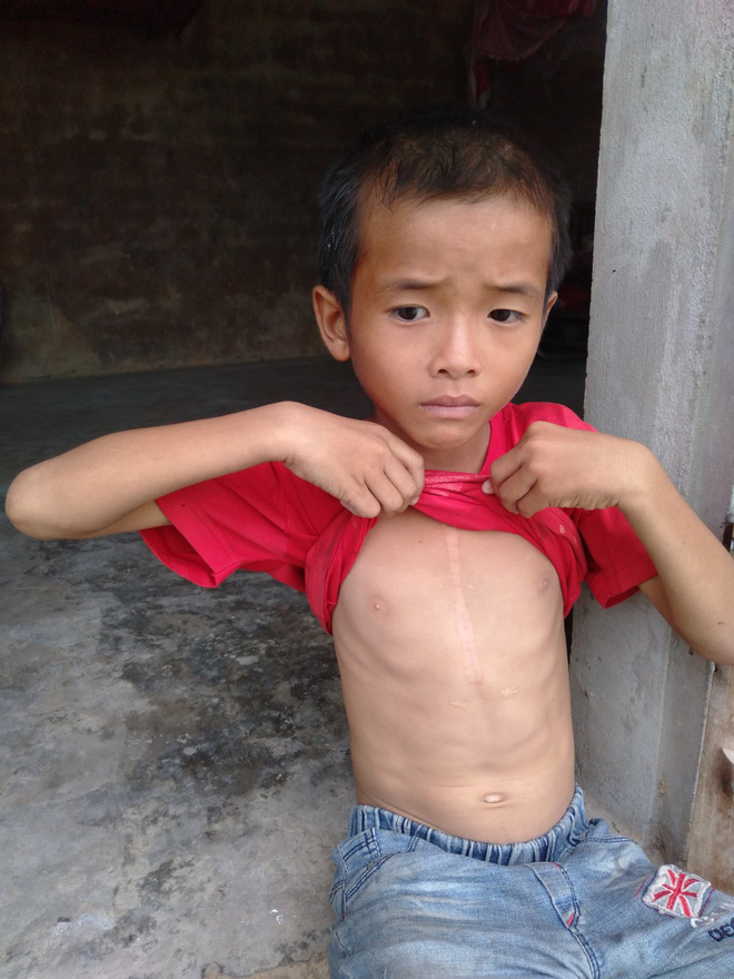 """Bé trai 9 tuổi không có bố, mắc bệnh tim đau đớn nhìn mẹ cận kề cái chết: """"Cháu sẽ sống sao nếu không còn mẹ?"""" - Ảnh 3."""