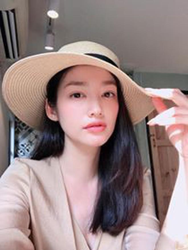 """Hoa hậu Trúc Diễm: """"Mắt tôi đã bình thường rồi không lồi hay biến dạng nữa!"""" - Ảnh 6."""