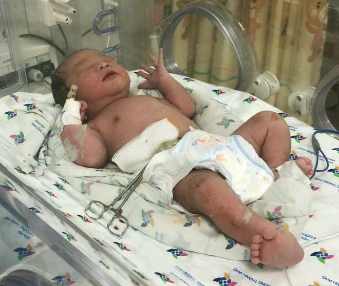 Khoảnh khắc bé trai cất tiếng khóc chào đời ngay trước cổng bệnh viện ở Sài Gòn khiến bác sĩ xúc động - Ảnh 3.