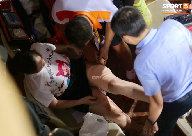 Vụ cổ động viên nữ trọng thương do dính pháo sáng, công an triệu tập 14 người quê ở Nam Định để điều tra - Ảnh 1.