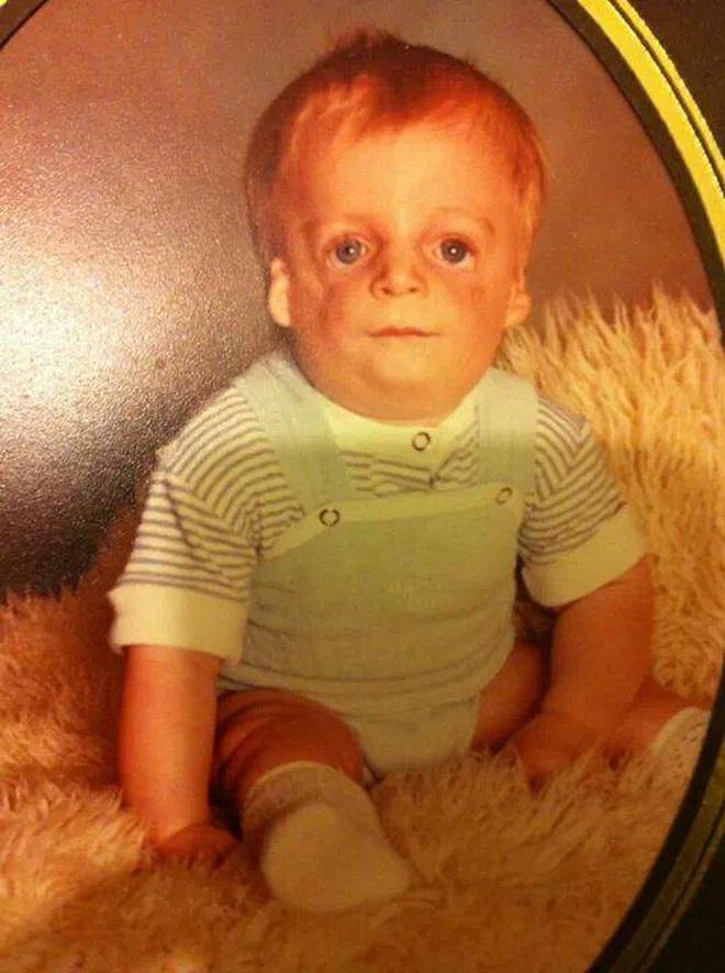 Sinh ra với diện mạo kỳ lạ, bé trai mới 2 ngày tuổi đã bị bố mẹ bỏ rơi và cuộc sống ai cũng phải ngước nhìn 3 thập kỷ sau - ảnh 4