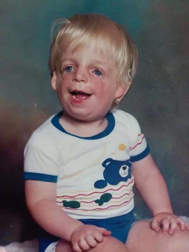Sinh ra với diện mạo kỳ lạ, bé trai mới 2 ngày tuổi đã bị bố mẹ bỏ rơi và cuộc sống ai cũng phải ngước nhìn 3 thập kỷ sau - ảnh 3