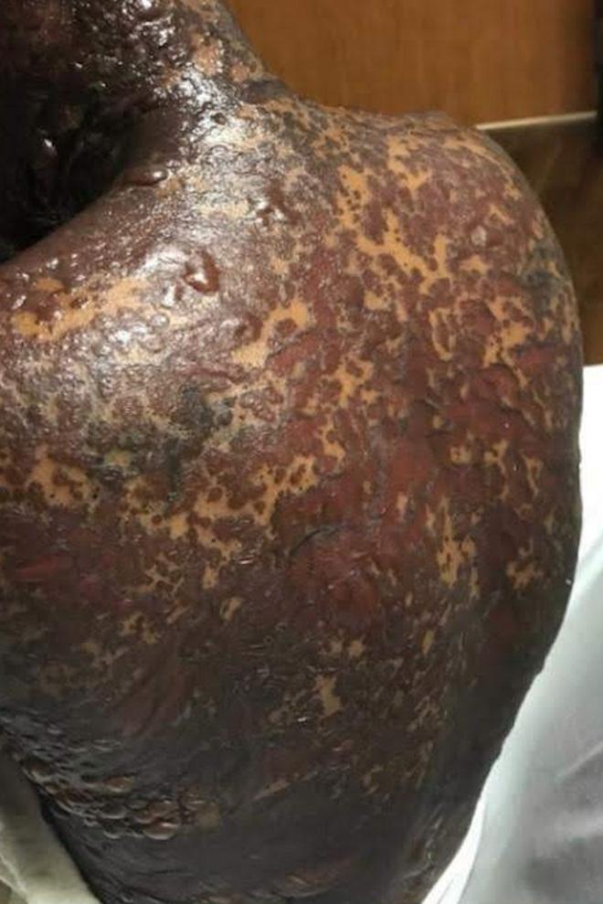 Căn bệnh lạ khiến một phụ nữ nổi mụn nước đen khắp người sau khi uống thuốc kháng sinh và giảm đau - ảnh 4