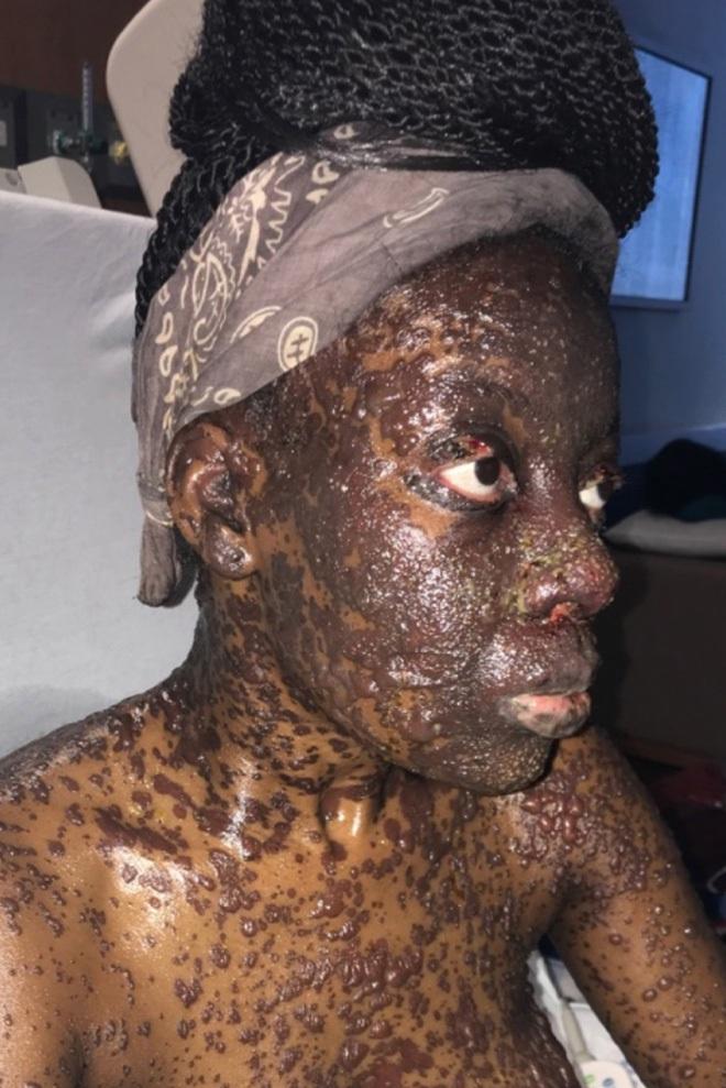 Căn bệnh lạ khiến một phụ nữ nổi mụn nước đen khắp người sau khi uống thuốc kháng sinh và giảm đau - ảnh 3