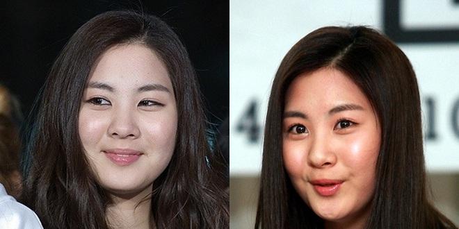 Từng bị chê vì khuôn mặt tròn xoe, Seohyun hé lộ 2 tips nhỏ giúp cô lột xác ngoạn mục - Ảnh 2.
