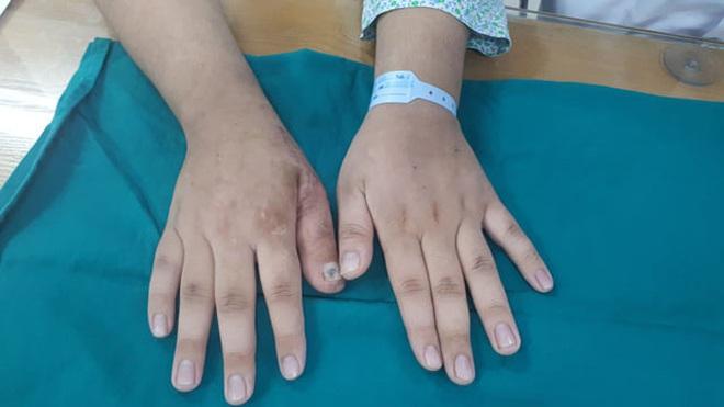 Hà Nội: Chuyển ngón chân làm... ngón tay cho nam thanh niên 17 tuổi bị tai nạn lao động - ảnh 3