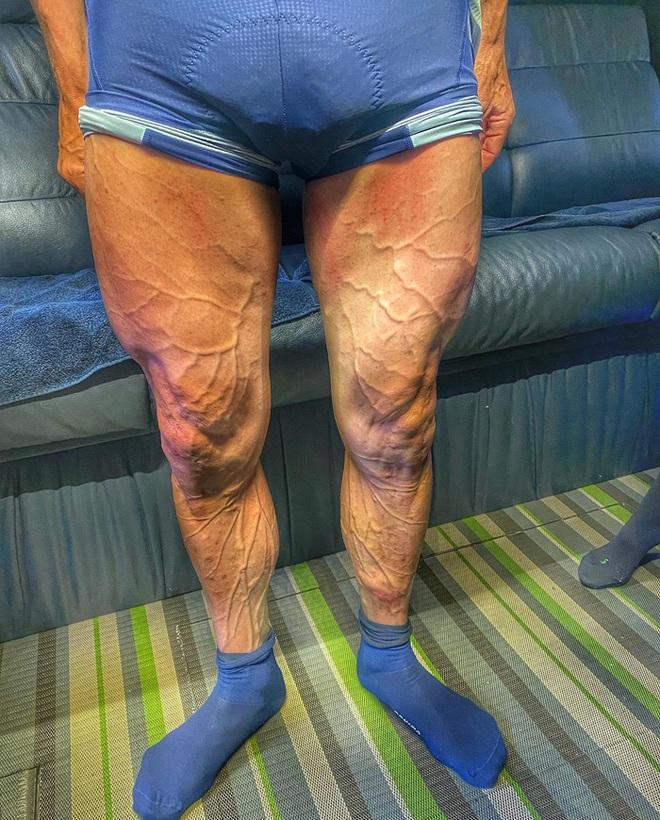 VĐV đua xe đạp gây choáng khi đăng tải hình ảnh cặp giò lên MXH, fan thảng thốt: Anh ơi đừng tập nữa, chân cẩn thận nổ tung - ảnh 1