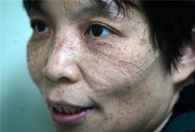 Trung Quốc công bố 1.716 nhân viên y tế đã nhiễm virus corona trong 'cuộc chiến sinh tử', chiếm 3,8% số ca bệnh cả nước - Ảnh 1.