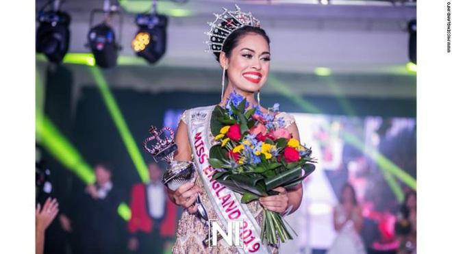 Hoa hậu Anh 2019: Profile khủng với IQ 146, khiến thế giới xúc động khi cất vương miện về làm bác sĩ chống dịch COVID-19 - ảnh 4