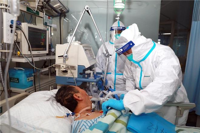 Chuyên gia phân tích: Máy thở và máy thở không xâm nhập có công dụng thế nào trong việc điều trị Covid-19? - ảnh 1