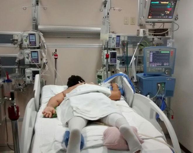 Trải nghiệm vượt cửa tử của những bệnh nhân Covid-19 trong phòng chăm sóc tích cực: Cảm giác giống như... bị chôn sống - ảnh 4