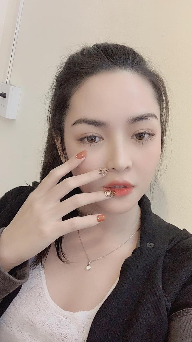 Vũ Thanh Quỳnh lột xác sau phẫu thuật thẩm mỹ