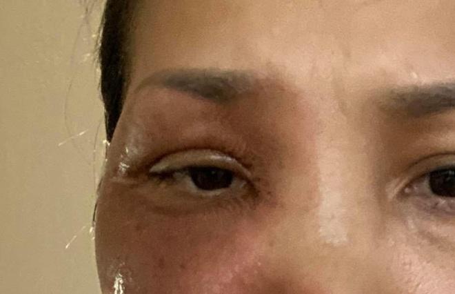 Ca sĩ Hồng Ngọc hé lộ ảnh cận vết bỏng nặng trên mặt, dàn nghệ sĩ Vbiz chạnh lòng rơi nước mắt - ảnh 1