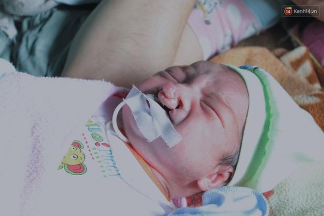 Xót cảnh bé trai 3 tháng tuổi không biết mặt bố, vừa chào đời đã mắc bệnh tim, hở hàm ếch sống bên người mẹ khù khờ - Ảnh 2.