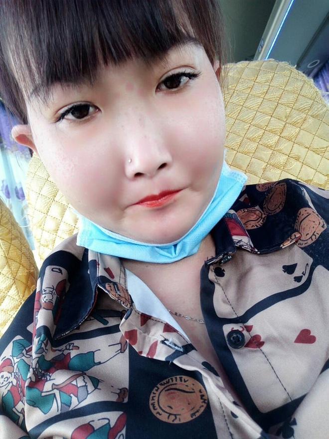 Cô gái Bến Tre mắc bệnh xơ cứng bì quay clip tiktok hút 2 triệu view: Gia cảnh khó khăn, bị trêu chọc vì gương mặt kì lạ - Ảnh 4.
