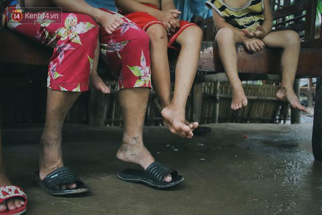 """5 đứa trẻ đói ăn bên người mẹ khờ mang bụng bầu 7 tháng: """"Con không muốn mẹ sinh em nữa, nhà con nghèo lắm rồi"""" - Ảnh 2."""