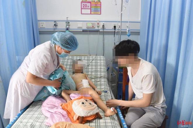 Cậu bé 3 tuổi bị thủng 8 lỗ ở ruột vì nuốt 22 viên bi nam châm vào bụng - ảnh 4