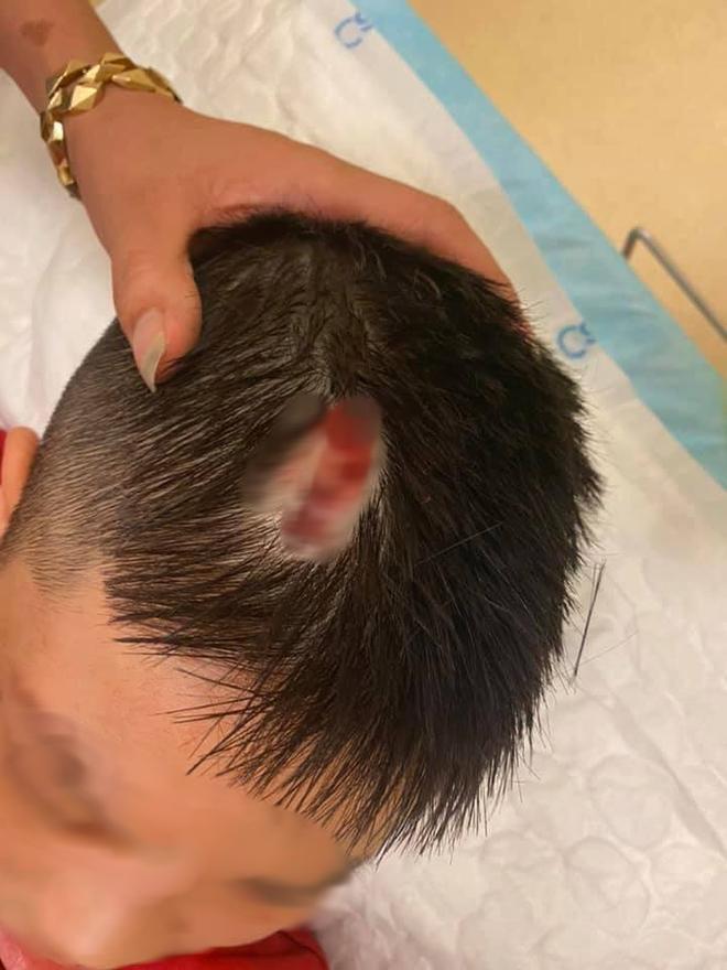 Hà Nội: Chổi lau nhà rơi từ tầng 5 chung cư cao cấp khiến bé trai vỡ đầu phải nhập viện - ảnh 4