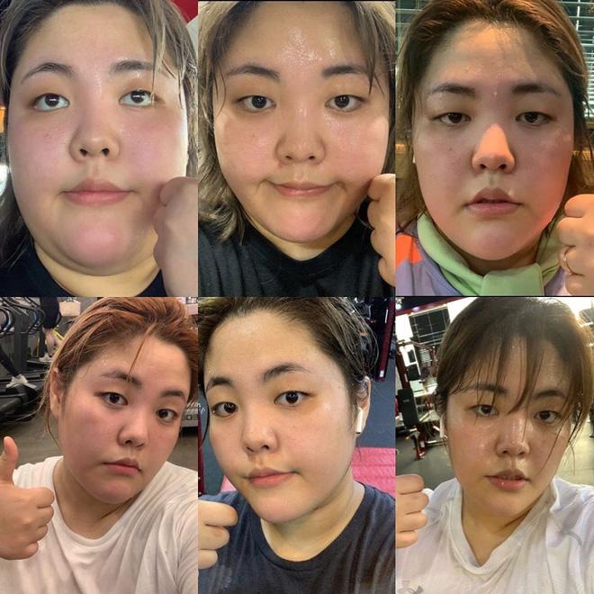 Thánh ăn Yang Soobin bị mất giọng sau phẫu thuật ung thư tuyến giáp, không thể giao lưu với fan nhưng vẫn lạc quan - ảnh 5