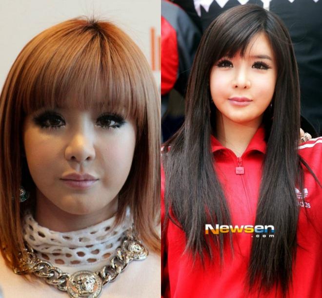 Nữ idol bất hạnh Park Bom: Trầm cảm trước cái chết của bạn, bị gắn mác tội phạm và điều kỳ diệu ở phía cuối con đường - ảnh 5