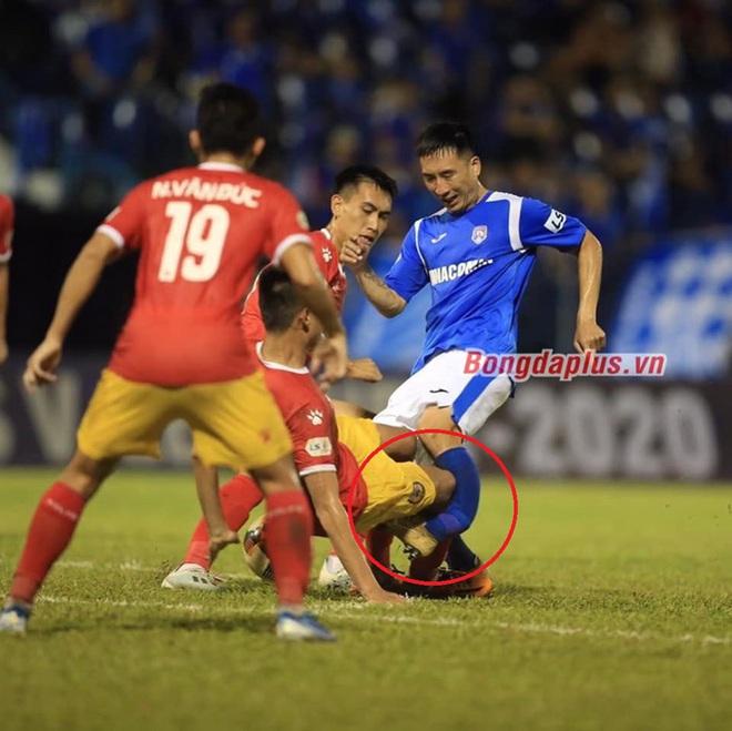 Sốc: Cầu thủ Than Quảng Ninh gãy chân sau pha va chạm kinh hoàng - ảnh 1