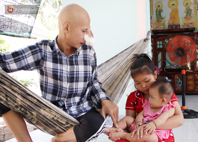 Bước đường cùng của người cha bị ung thư hốc mũi ôm 2 đứa con thơ dại: Con sợ cha chết, không sống cùng tụi con nữa - ảnh 17