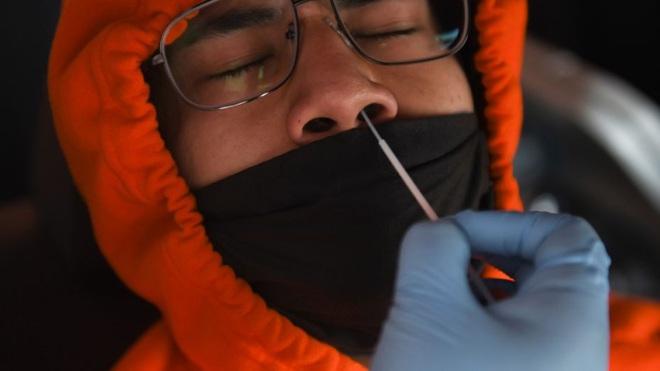 Mỹ lại ghi nhận kỷ lục đáng sợ với 48.000 ca nhiễm mới Covid-19 chỉ trong 1 ngày: Lên đến 100.000 ca cũng không gây ngạc nhiên - ảnh 1