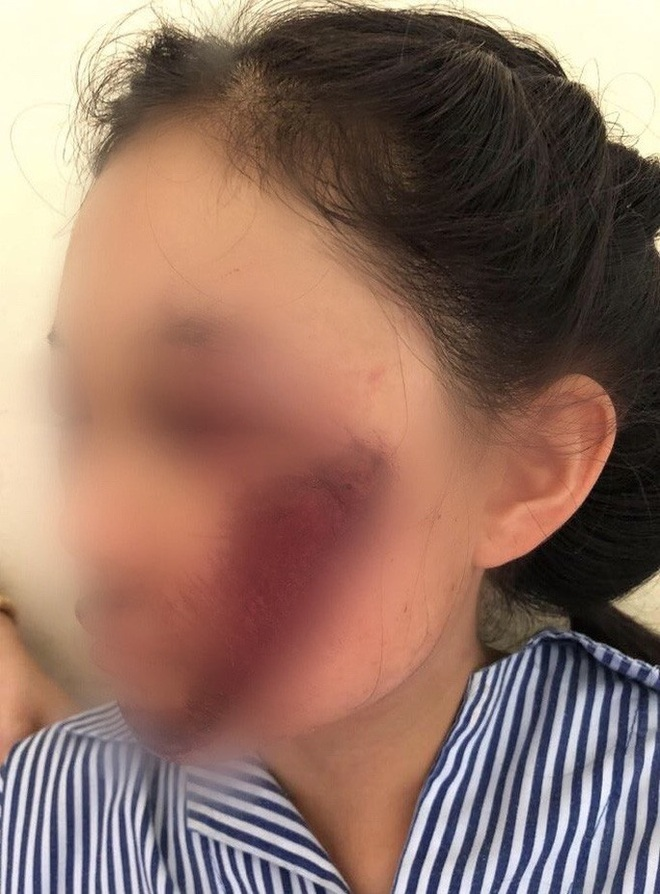 Áo chống nắng cuốn vào bánh xe khiến nữ sinh tổn thương mặt nghiêm trọng - ảnh 1