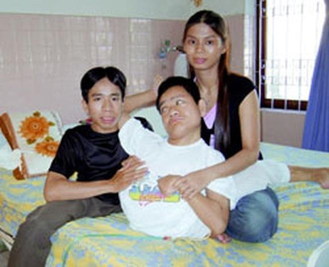 Nhìn lại ca phẫu thuật tách cặp song sinh Việt - Đức 32 năm trước: Ca mổ đi vào lịch sử y học Việt Nam - ảnh 10