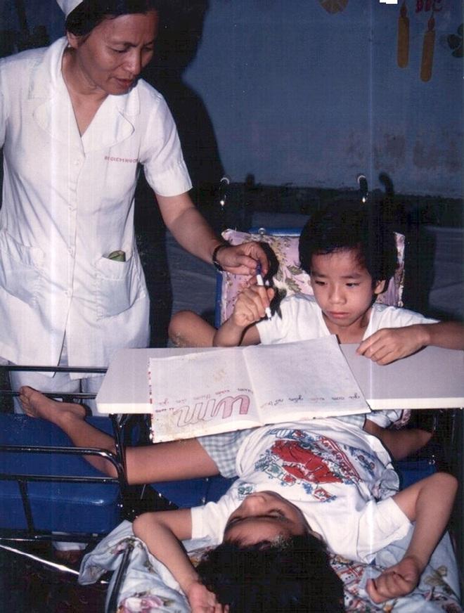 Nhìn lại ca phẫu thuật tách cặp song sinh Việt - Đức 32 năm trước: Ca mổ đi vào lịch sử y học Việt Nam - ảnh 5
