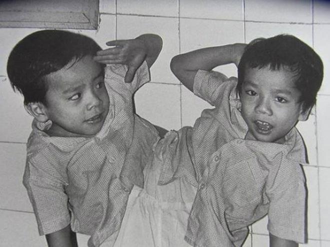 Nhìn lại ca phẫu thuật tách cặp song sinh Việt - Đức 32 năm trước: Ca mổ đi vào lịch sử y học Việt Nam - ảnh 4