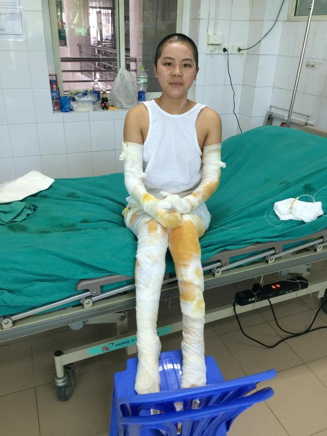 Gặp cô giáo xinh đẹp bị bỏng nặng do nổ bóng bay: Mình vẫn đang sống và càng phải sống mạnh mẽ hơn bất cứ lúc nào - ảnh 1