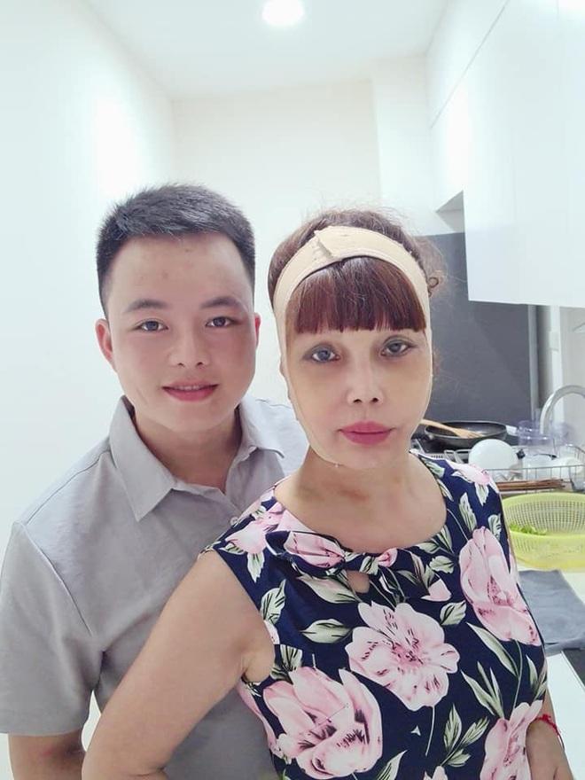 Xôn xao hình ảnh gương mặt sưng phù, biến dạng của cô dâu 62 tuổi và sự cưng nựng của chồng trẻ kém 36 tuổi gây bất ngờ - ảnh 6