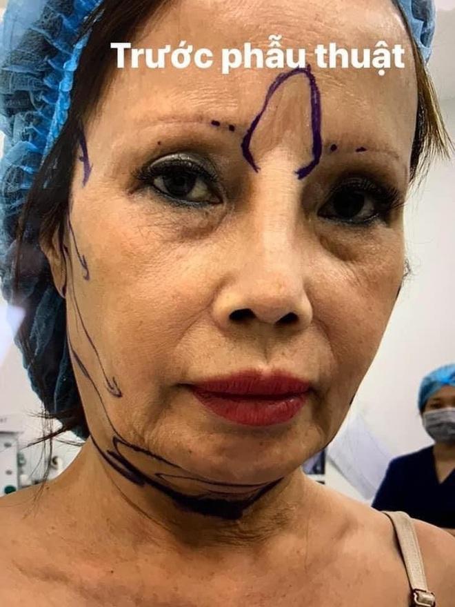 Xôn xao hình ảnh gương mặt sưng phù, biến dạng của cô dâu 62 tuổi và sự cưng nựng của chồng trẻ kém 36 tuổi gây bất ngờ - ảnh 1
