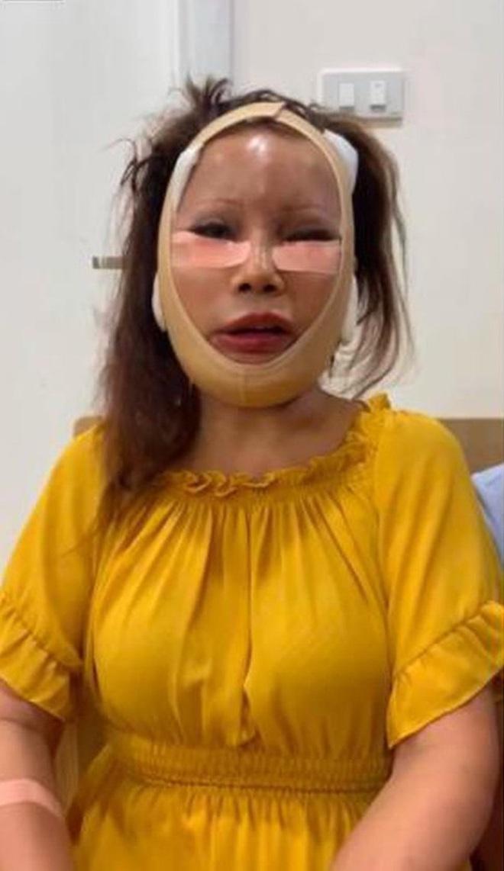 Xôn xao hình ảnh gương mặt sưng phù, biến dạng của cô dâu 62 tuổi và sự cưng nựng của chồng trẻ kém 36 tuổi gây bất ngờ - ảnh 2