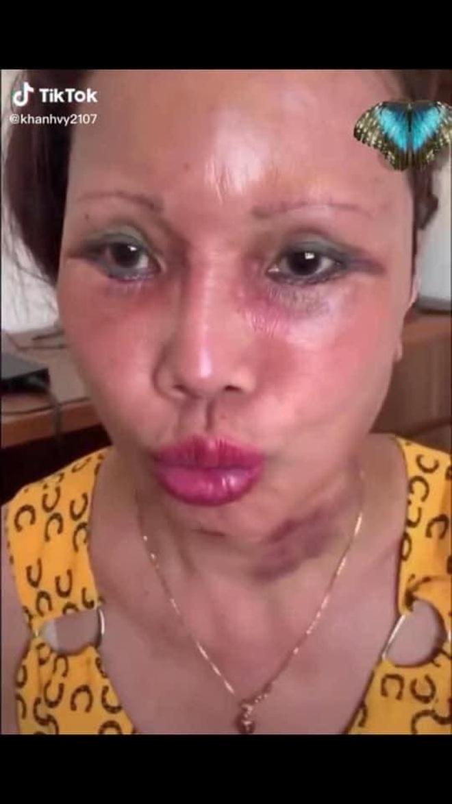 Xôn xao hình ảnh gương mặt sưng phù, biến dạng của cô dâu 62 tuổi và sự cưng nựng của chồng trẻ kém 36 tuổi gây bất ngờ - ảnh 4