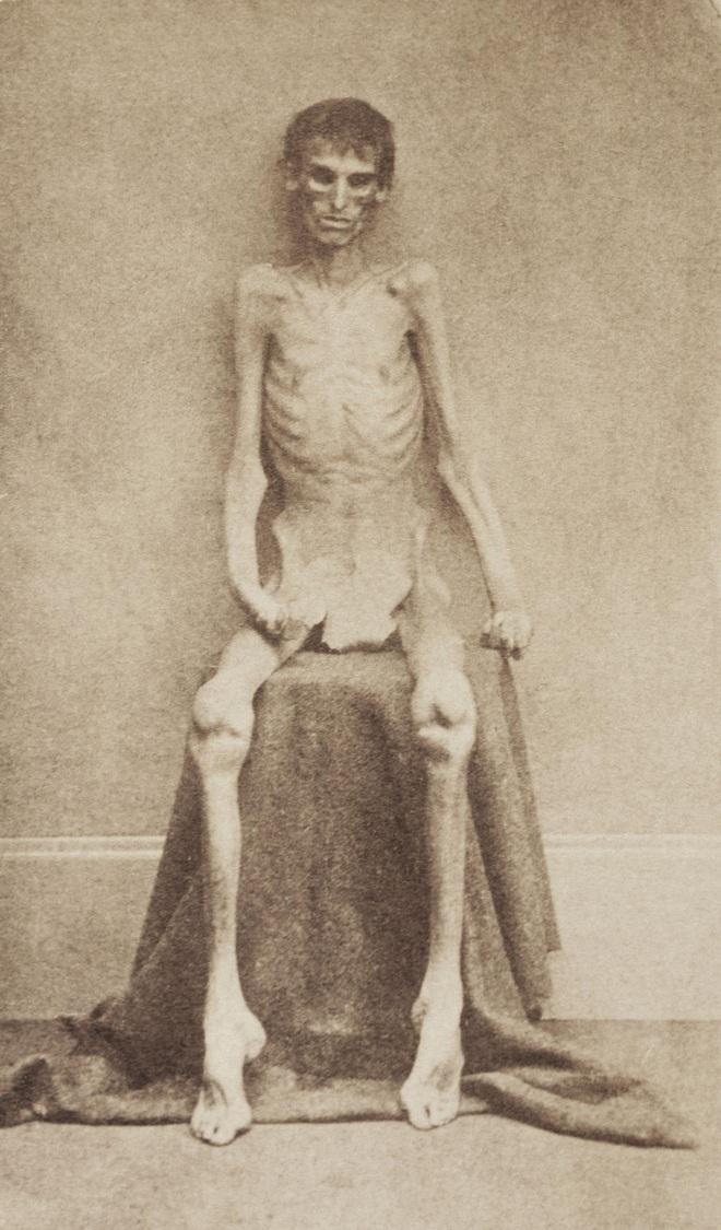 Chuyện về nữ lang băm chữa bệnh siêu tàn nhẫn: Ít nhất 15 nạn nhân bị bỏ đói tới chết, vào tù ra tội mà nhiều người vẫn cả tin tới cậy nhờ - ảnh 6
