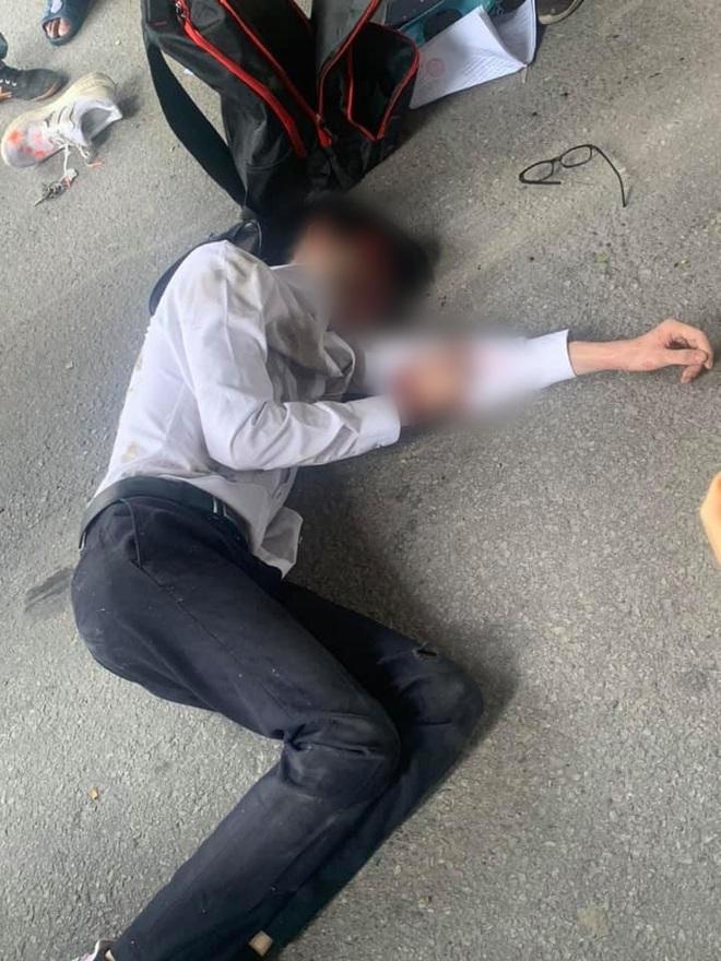 Hà Nội: Nam sinh gặp tai nạn, phải nhập viện khẩn cấp khi đang trên đường đi thi THPT quốc gia trở về nhà - ảnh 2