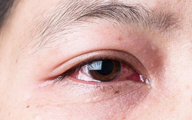 Người thường xuyên thức khuya dễ gặp phải 4 hiện tượng xấu trên mặt, không sửa ngay sẽ làm cơ thể sinh ra nhiều thứ bệnh - ảnh 3