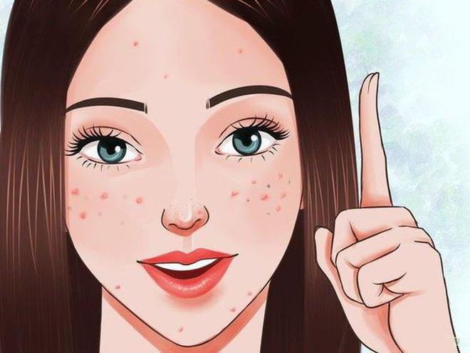 Bạn thường mọc mụn ở vị trí nào trên mặt: mỗi vị trí đều ngầm báo hiệu những vấn đề sức khỏe xảy ra trong cơ thể - ảnh 4