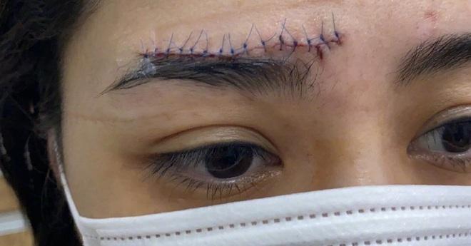 Chung Hân Đồng khiến dân tình ngỡ ngàng vì ảnh vết thương trải dài nửa trán, khâu hàng chục mũi sau tai nạn - ảnh 1