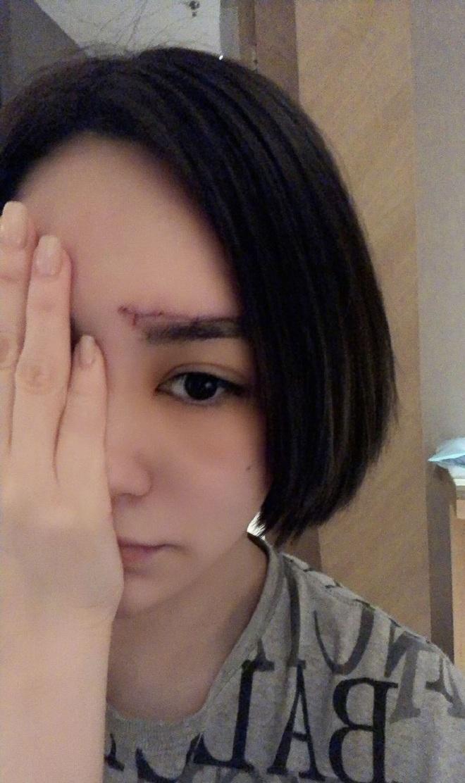 Chung Hân Đồng khiến dân tình ngỡ ngàng vì ảnh vết thương trải dài nửa trán, khâu hàng chục mũi sau tai nạn - ảnh 4